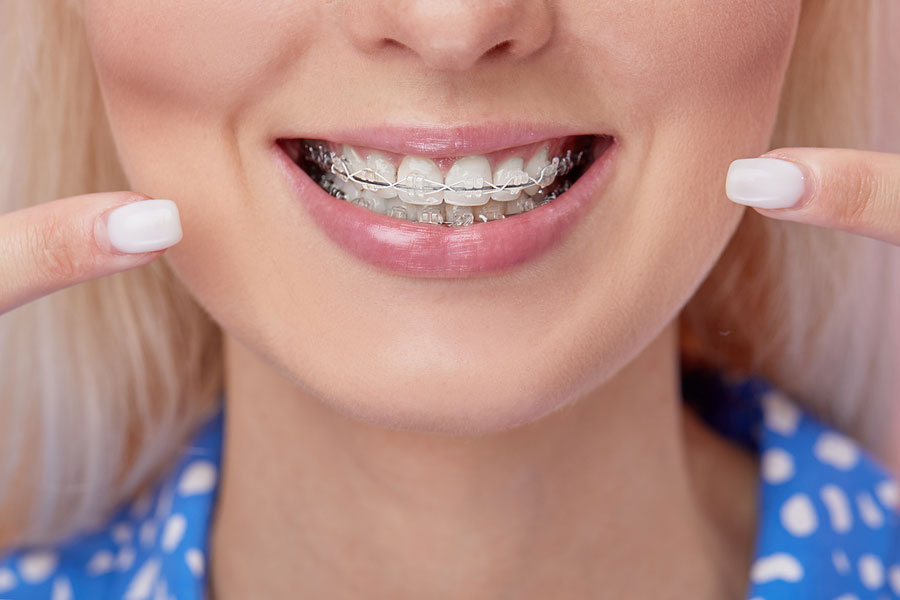 Which Kind of Braces is Best?