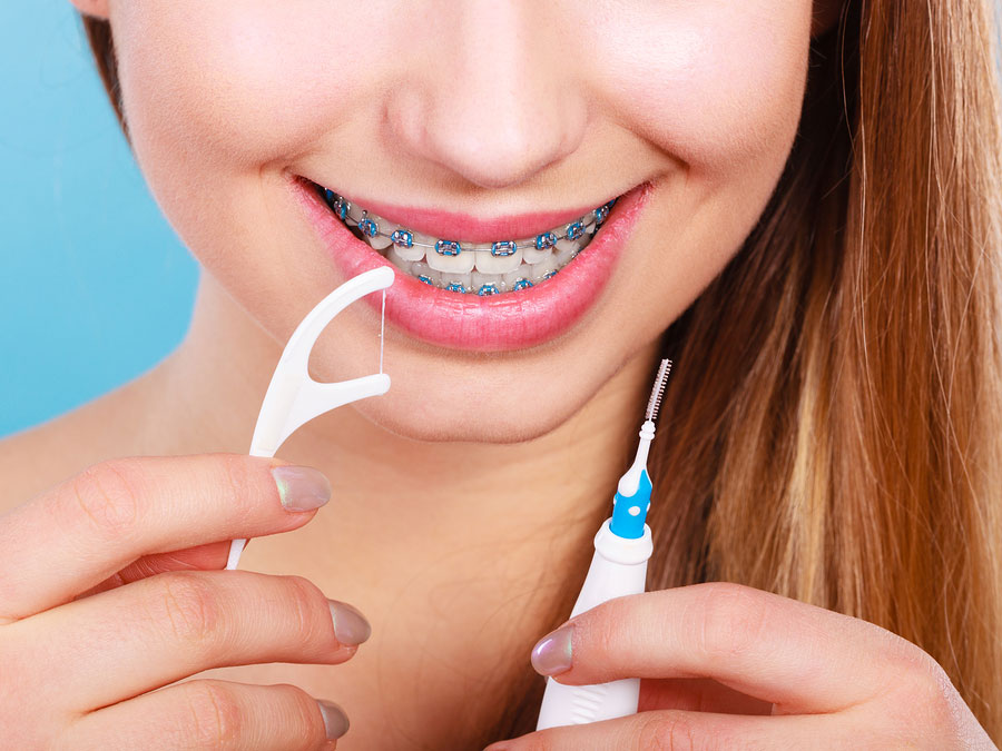 4 Tips to Make Flossing Easier with Braces