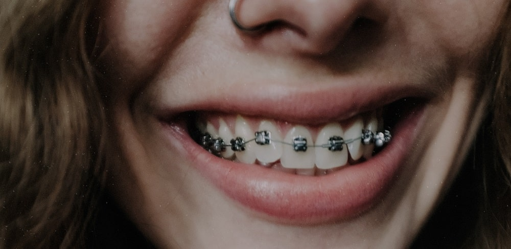 How to Take Care of Your Braces