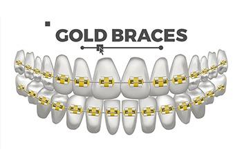 charleston sc orthodontist gold braces