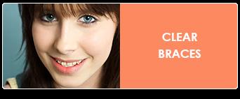 clear braces in charleston sc