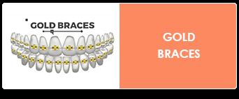 gold braces in charleston sc