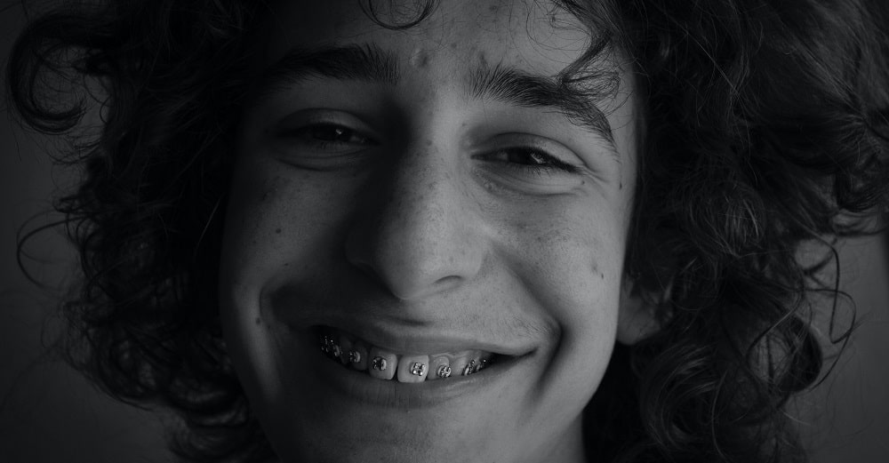 Types of Braces: The Ultimate Guide