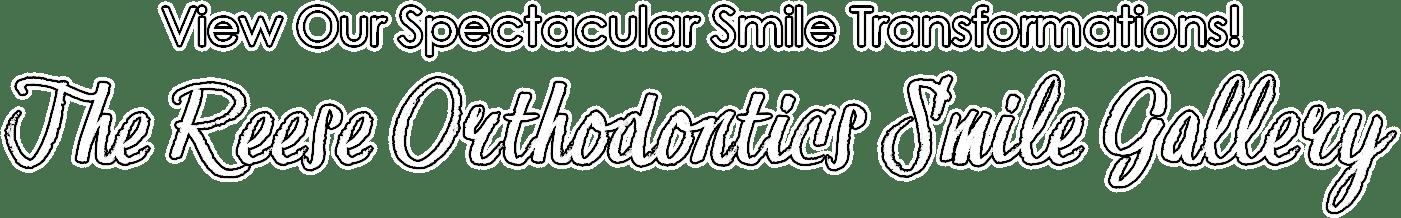 reese orthodontics smile gallery